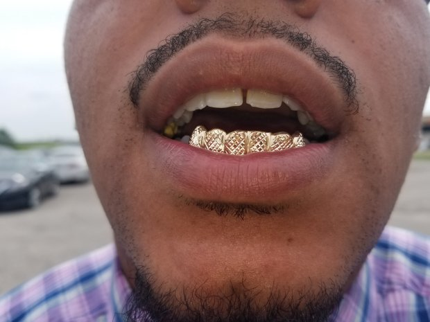 GRILLS | DIAMOND LYFE
